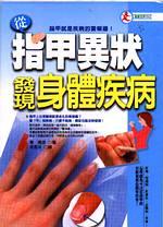 從指甲異狀發現身體疾病