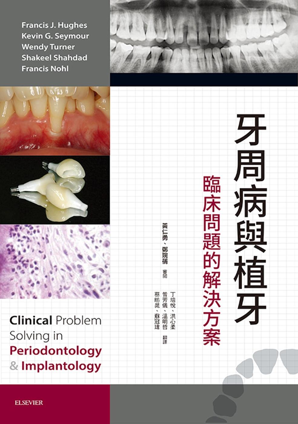 牙周病與植牙:臨床問題的解決方案