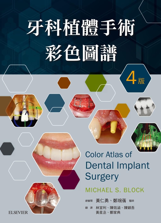 牙科植體手術彩色圖譜(4版)