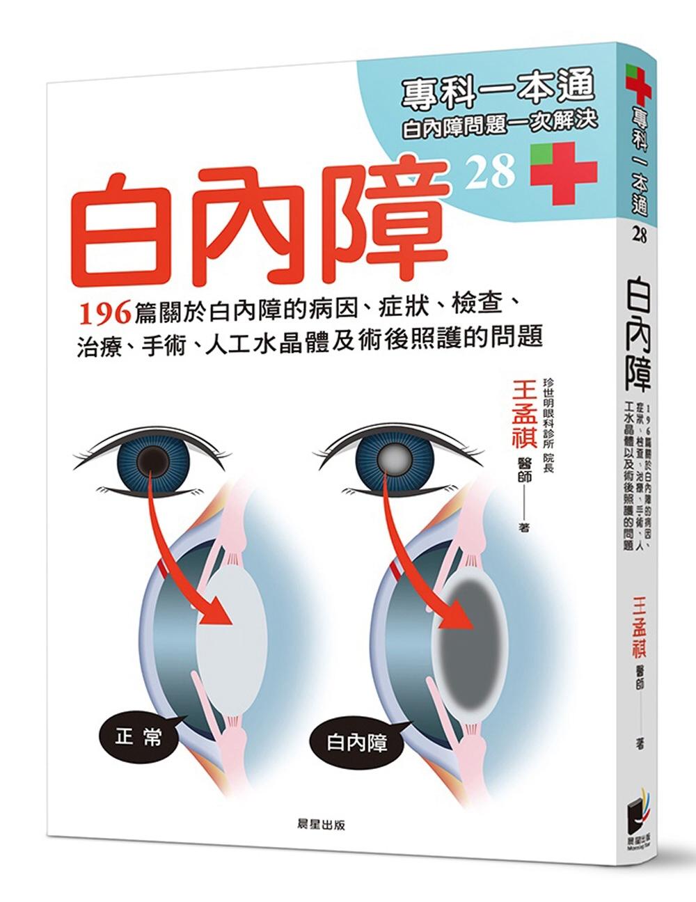 ◤博客來BOOKS◢ 暢銷書榜《推薦》白內障:196篇關於白內障的病因、症狀、檢查、治療、手術、人工水晶體以及術後照護的問題
