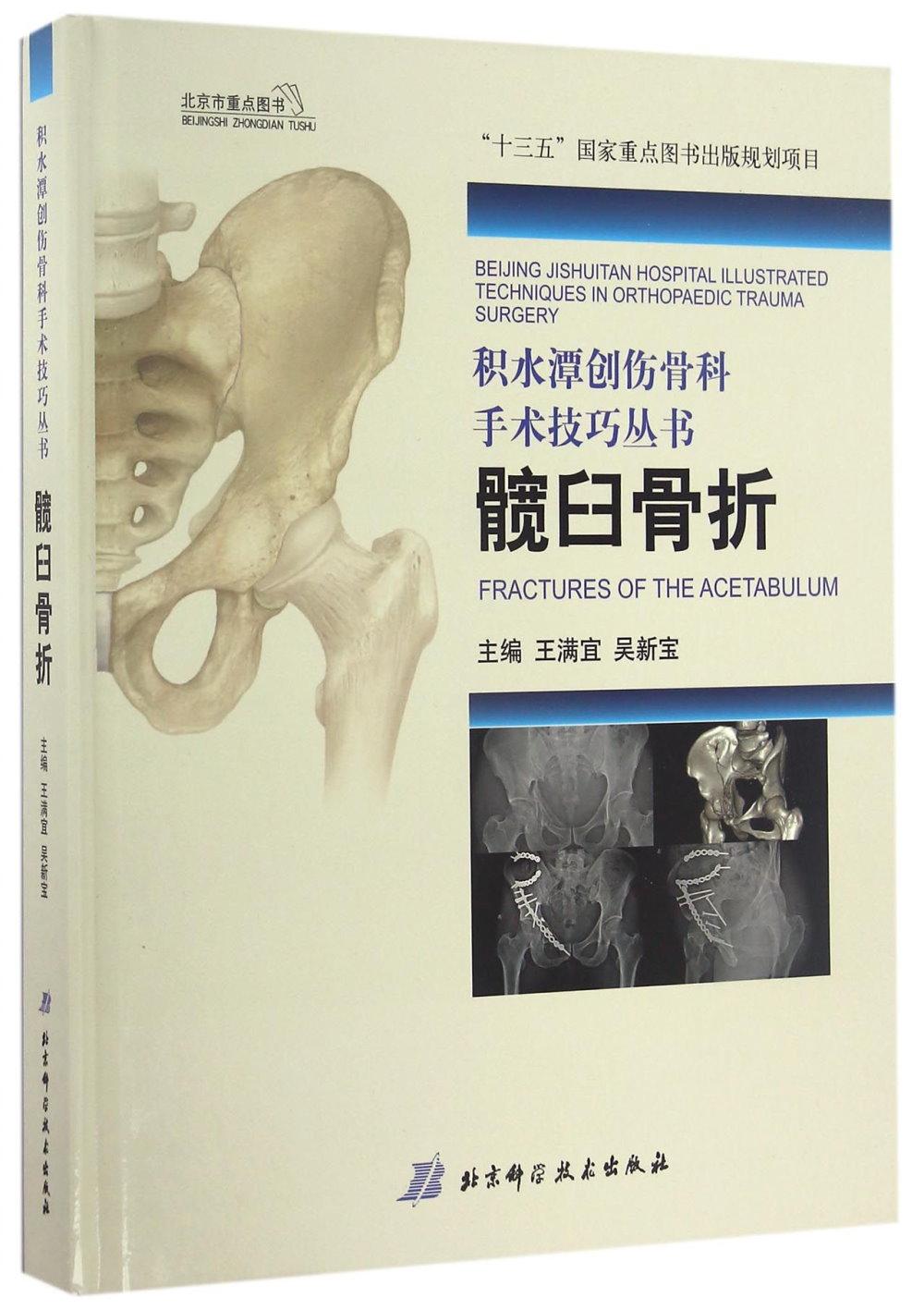 積水潭創傷骨科手術技巧叢書:髖臼骨折
