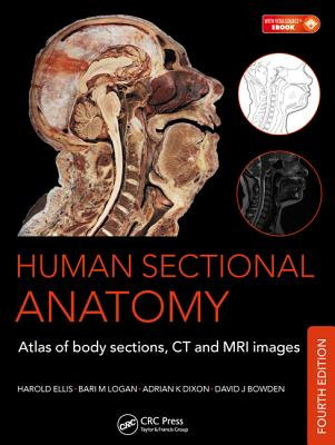 Human Sectional Anatomy: Atlas of Body Sections, CT and MRI Images