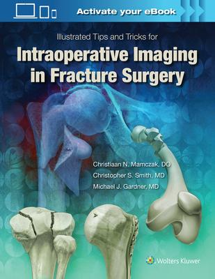 Illustrated Tips and Tricks for Intraoperative Imaging in Fracture Surgery