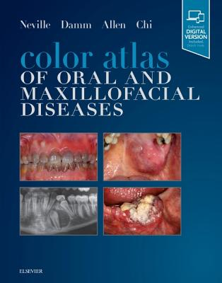 Color Atlas of Oral and Maxillofacial Diseases